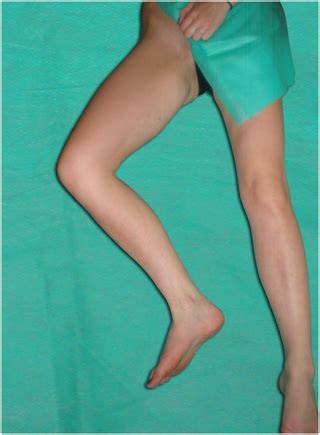 Cross-sectional area of the femoral vein varies with leg